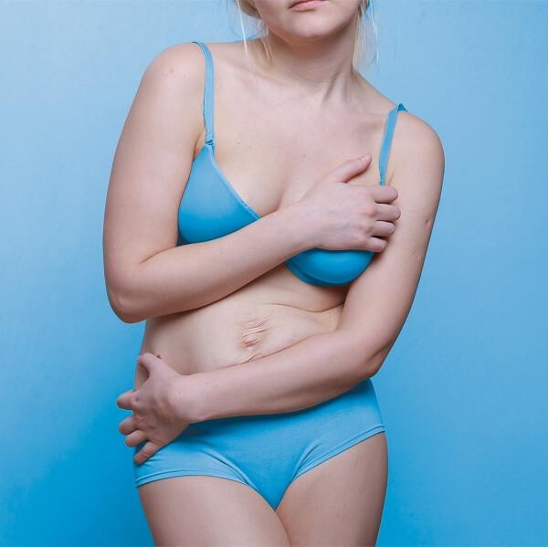 Rozejście mięśni prostych brzucha